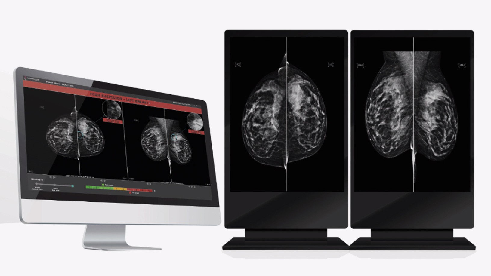 Therapixel: Using AI to improve breast cancer detection