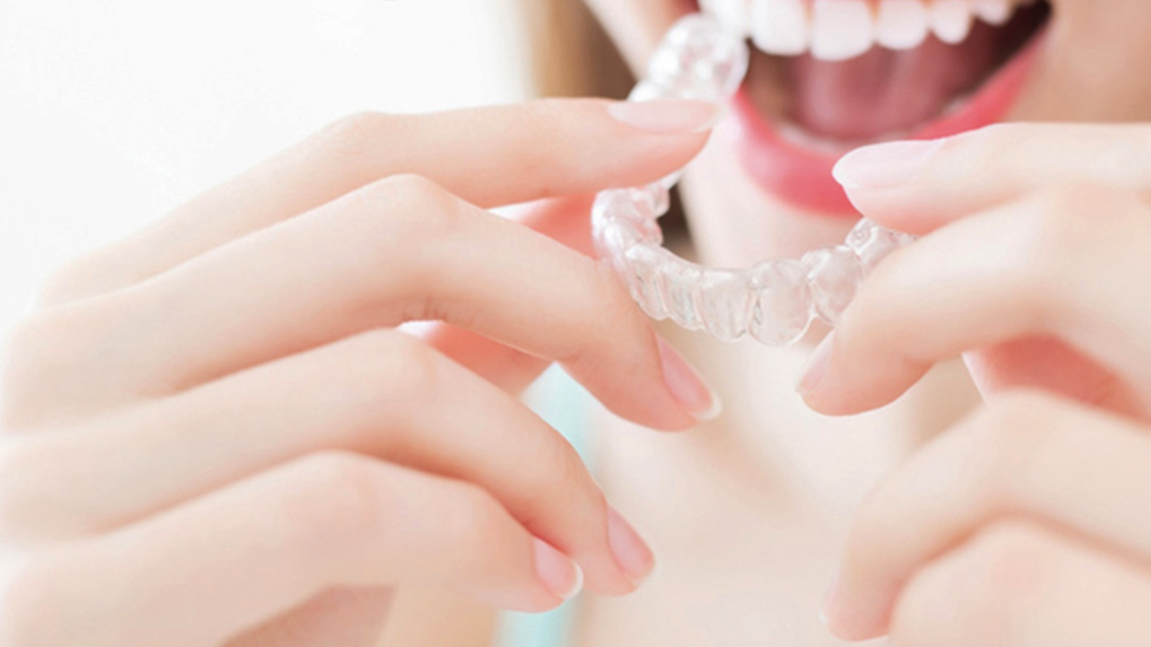 Smile Formula offers orthodontic treatment online, and 70% cheaper