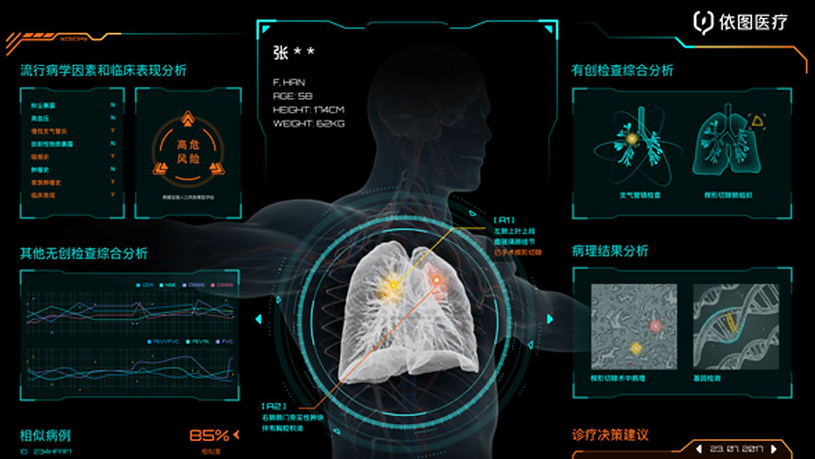 YITU takes smart healthcare to the next level